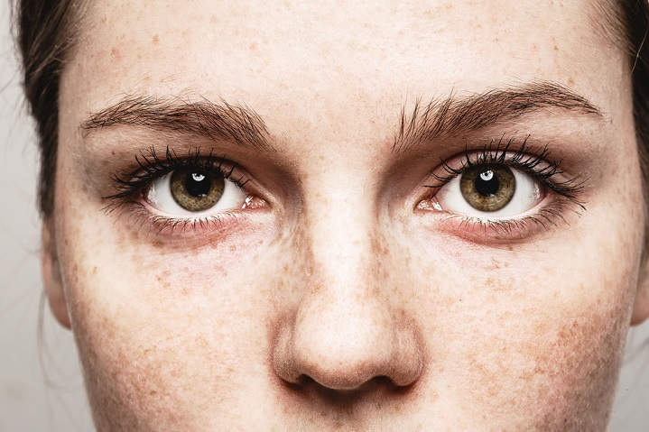 5 common eye problems and how to handle them