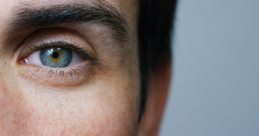 How to get a lost or stuck contact lens out your eye