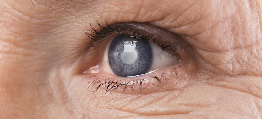 World Glaucoma Week 2020