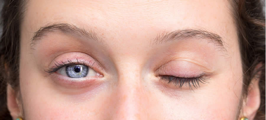 Bell's palsy: How it affects the eye