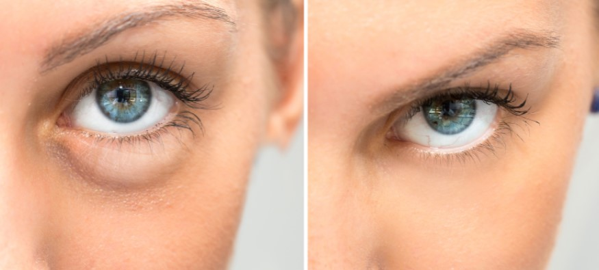 Eye with eye puffiness next to  eye without puffiness