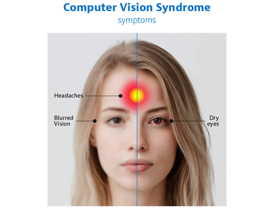 computer vision syndrome 2