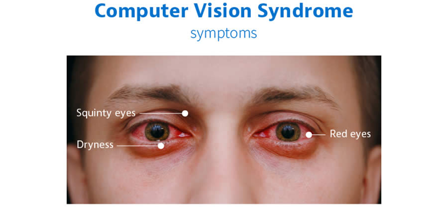computer vision syndrome 3