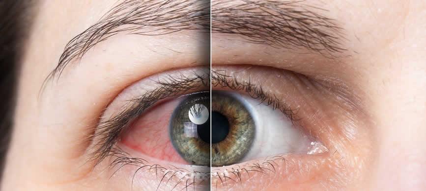 bloodshot eyes# vs normal eye