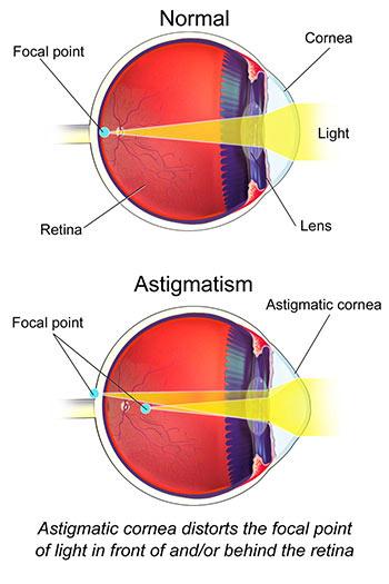 astigmatism eye